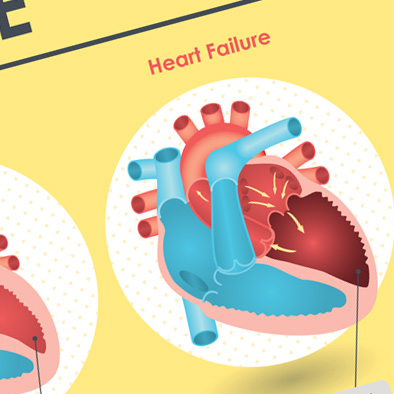 shf singapore heart foundation heart failure poster